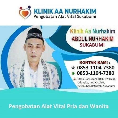 Ahli Pengobatan Alat Vital Sukabumi